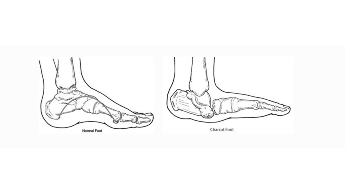 Charcot_Foot_Illustration